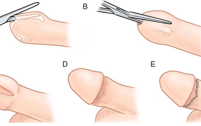 Dương vật sau khi cắt bao quy đầu